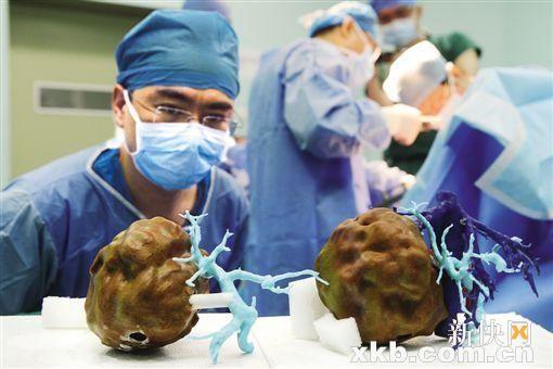 在国内尚属首例,昨日在广州完成   (新快报记者 黎楚君 通讯员 胡琼珍 范应方)反复腹泻4年余,一直被当地医院当作胃肠炎治疗,最后确诊右肝有巨大肿瘤。昨日,吴先生在南方医科大学珠江医院成功接受了肿瘤切除手术。手术负责医生方驰华教授介绍,这个手术复杂,难度非常大,若非借助3D打印的肝脏模型指导,切除手术无法完成。   据悉,利用3D打印指导完成复杂肝脏肿瘤切除手术,在国内尚属首例。   1.