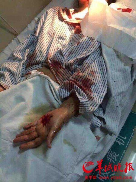 广州又现伤医事件:广医三院住院护士被病人刺伤
