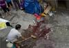 女工捡垃圾被炸伤