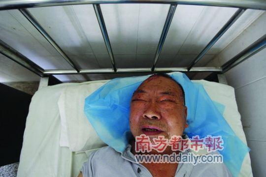 75岁的老村医郑远钦头部被砸伤入院。实习生陆仁贾南都记者张志韬摄