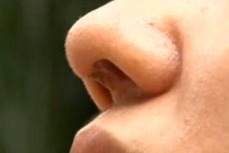 女子做隆鼻手术失败致硅胶外露